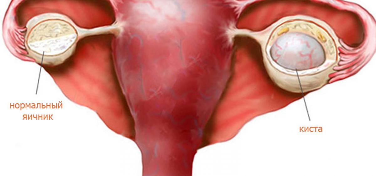 Возможно ли забеременеть с эндометриоидной кистой яичника: какая вероятность зачатия и какие могут быть сложности