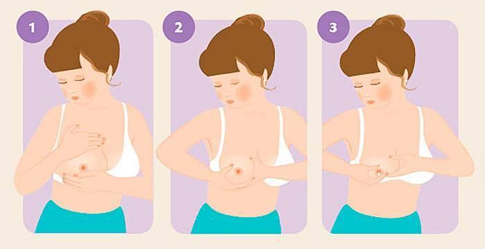 Лактостаз у кормящей матери: симптомы и лечение | уроки для мам