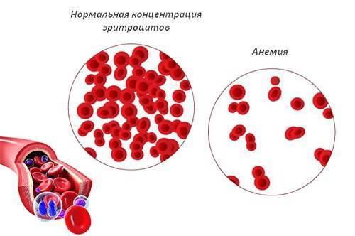 Железодефицитная анемия у детей: лечение, раннего возраста, грудничка