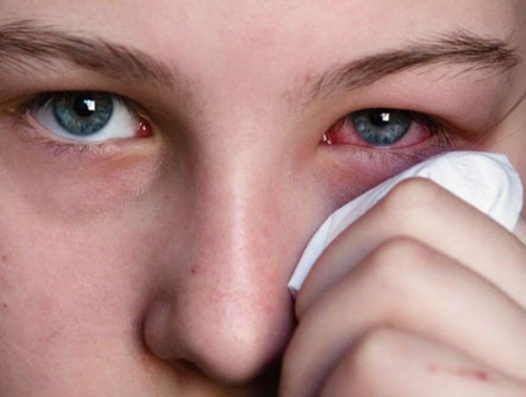 Аллергический конъюнктивит у ребенка: причины, симптомы, лечение