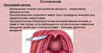 Лакунарная ангина — фото, лечение у детей и взрослых, симптомы и прогноз