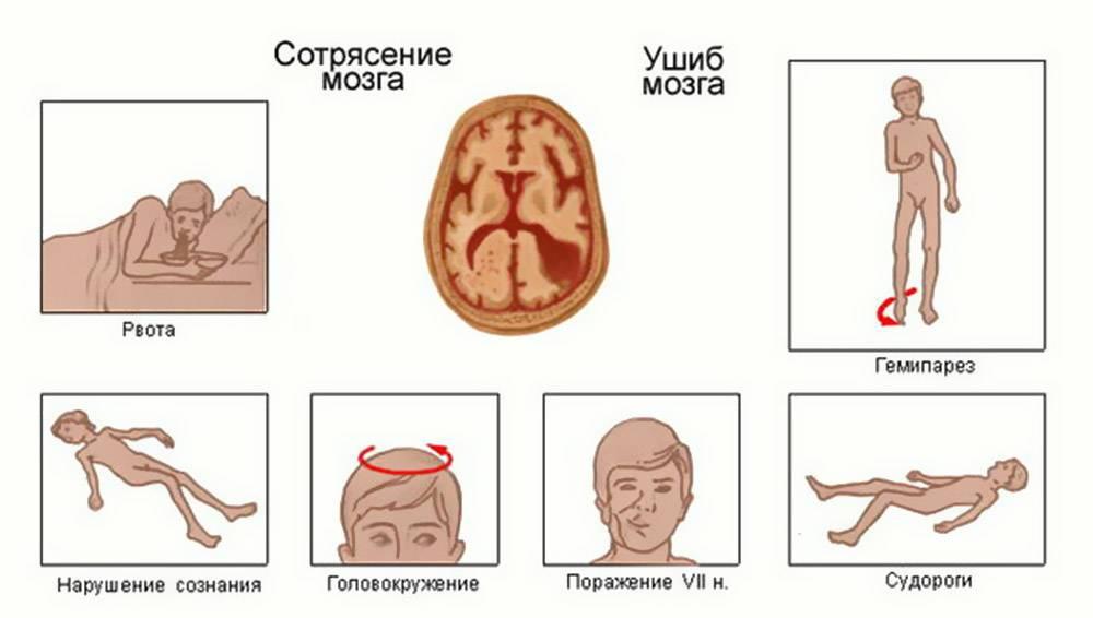 Опасно ли сотрясение головного мозга для ребёнка