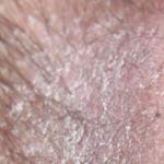 Покраснение и раздражение в паху у мужчин - как и чем лечить