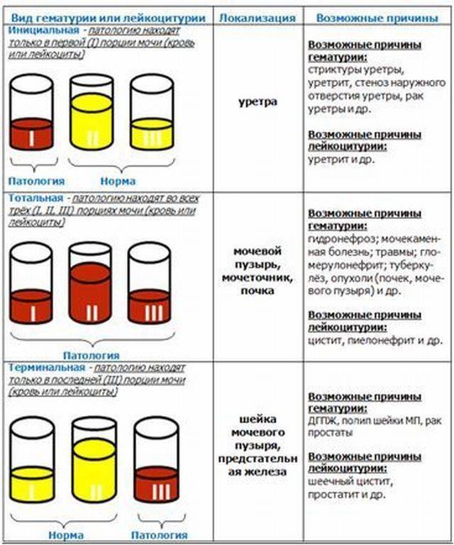 Проба мочи сулковича у детей: расшифровка анализа, как собирать? – медицинский справочник