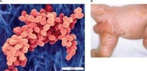 Стафилококк у грудничка: причины, признаки, симптомы, лечение