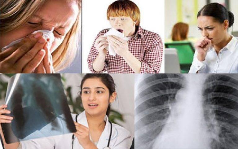 Первые проявления туберкулеза легких у детей