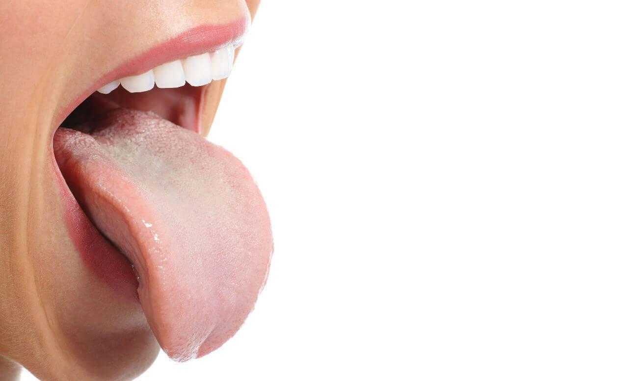 Сухость во рту: 9 причин и 9 способов устранить проблему