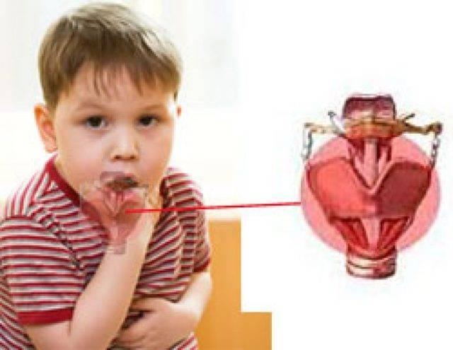 Ларингит у детей: симптомы и лечение, стадии ларингита