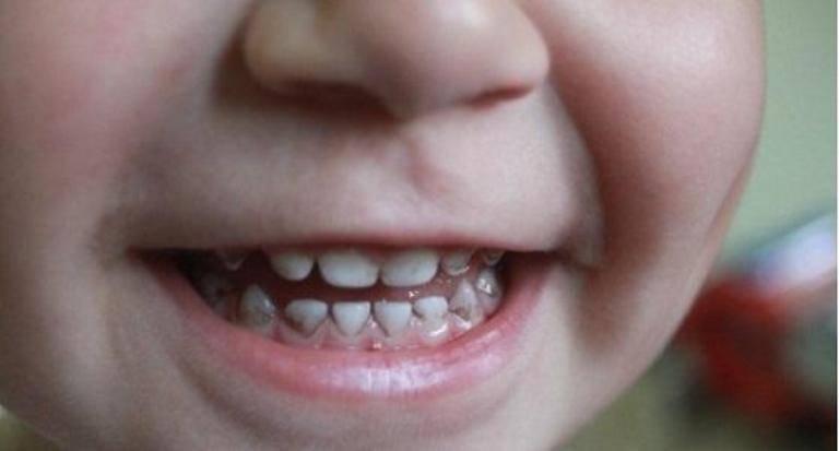 Черный налет на зубах у ребенка: причины, как избавится от налета присли