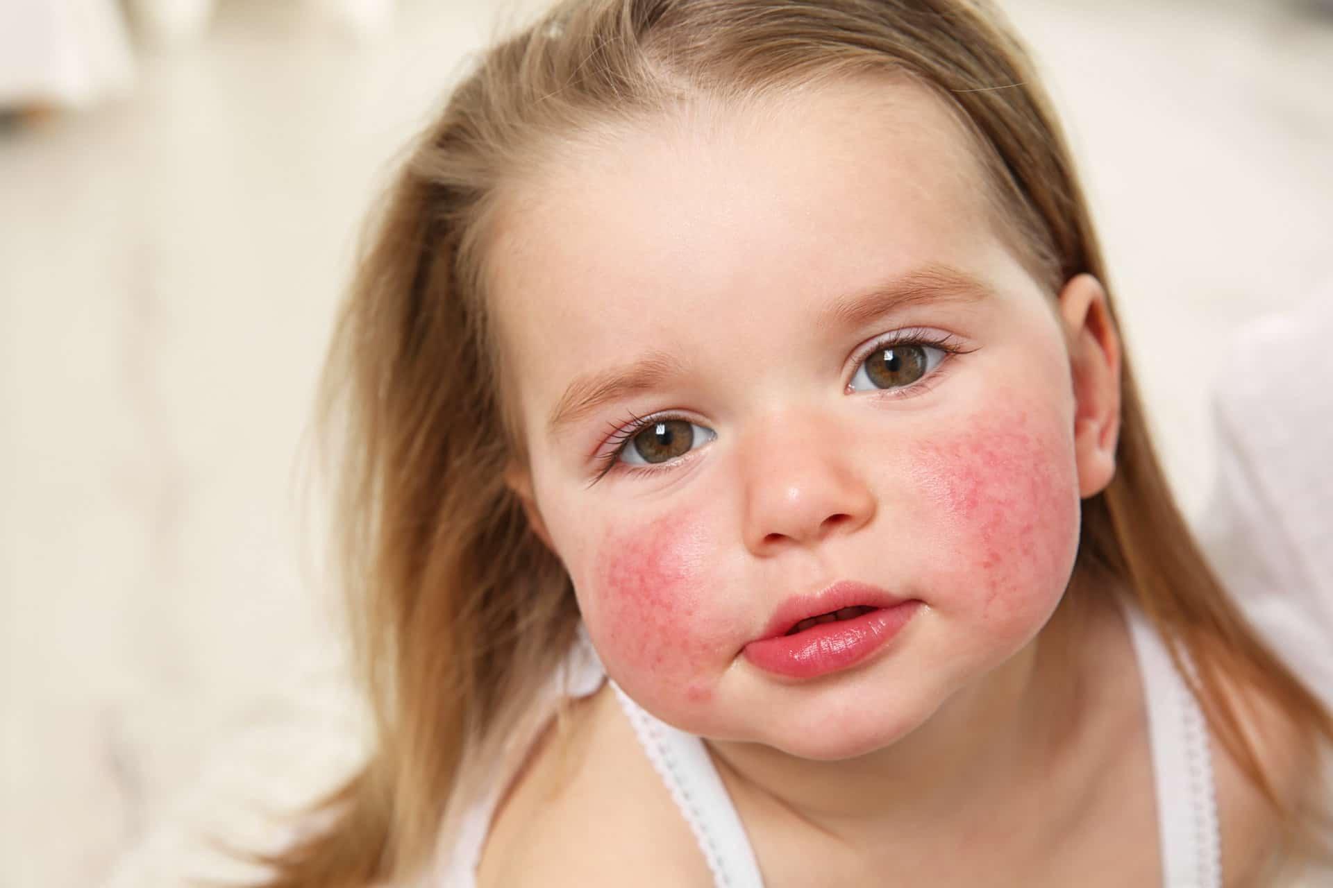 Пищевая аллергия у ребенка: симптомы, лечение, фото