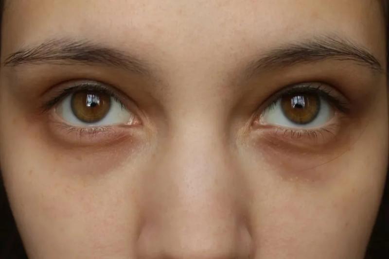 Круги у ребенка под глазами - что означают. как правильно установить причину появления синяков (темных кругов) под глазами у ребенка. - автор екатерина данилова - журнал женское мнение