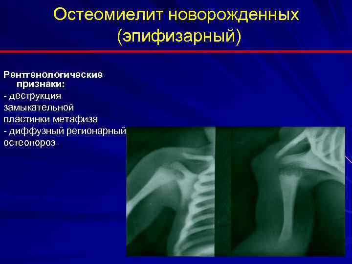 Причины, симптомы и лечение остеомиелита у новорожденных и детей раннего возраста, виды патологии. острый и хронический остеомиелит у детей