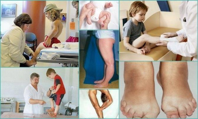 Дисплазия соединительной ткани у детей: лечение, симптомы | мрикрнц.рф