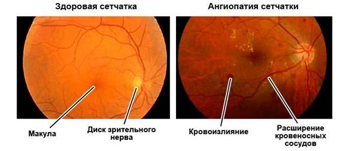 Ангиопатия сетчатки глаза у ребенка (новорожденного, грудничка), причины