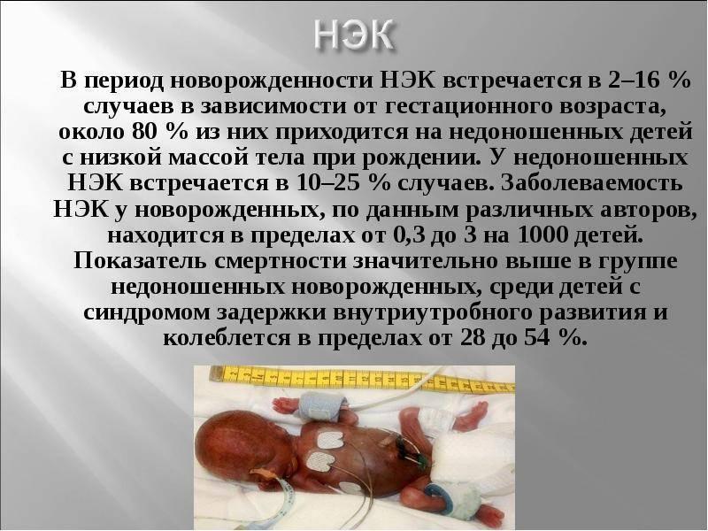 Острый энтероколит у грудных детей: причины, симптомы, лечение
