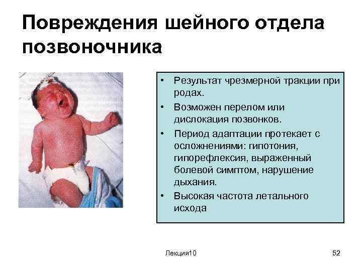 Все возможные родовые травмы новорожденного: причины и последствия