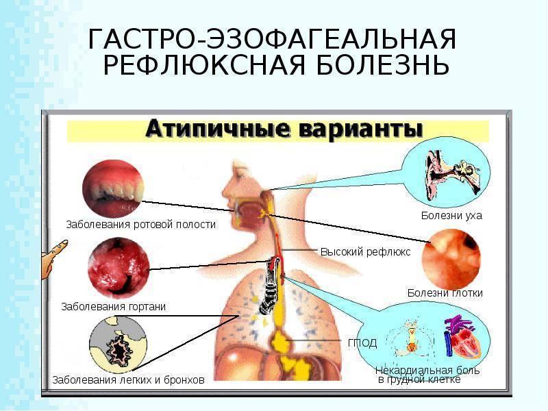Рефлюкс-эзофагит у детей: симптомы и лечение