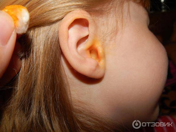 Пахнет из уха у ребенка