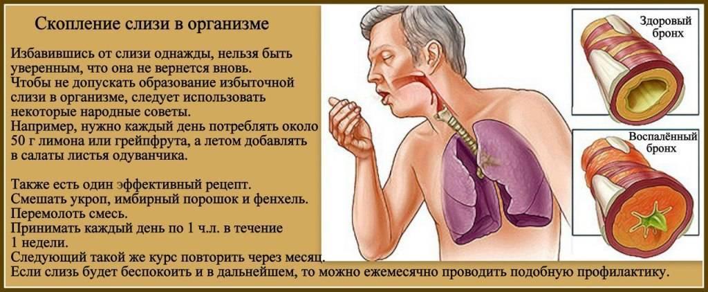 Мокрый кашель у ребенка без температуры у грудничка