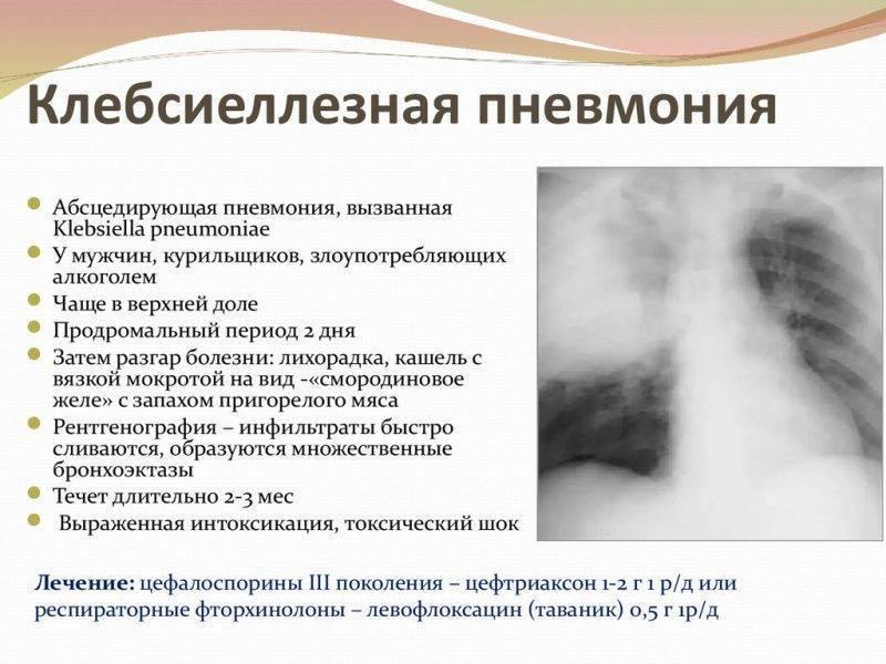 Клебсиелла у грудничка: симптомы, причины, методы лечения, отзывы : labuda.blog клебсиелла у грудничка: симптомы, причины, методы лечения, отзывы — «лабуда» информационно-развлекательный интернет журнал
