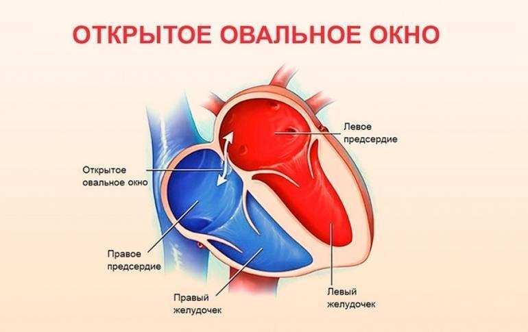 Овальное окно у детей - причины, симптомы и лечение