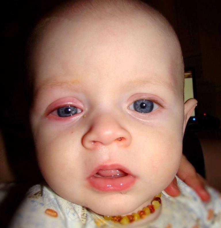 Конъюнктивит у младенца 2 месяца. способы лечения у детей. как лечить конъюнктивит у новорожденных - лечение
