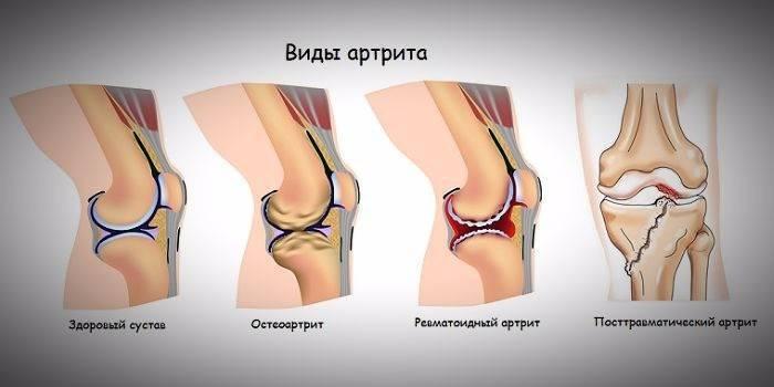 Артрит коленного сустава у детей: симптомы и лечение