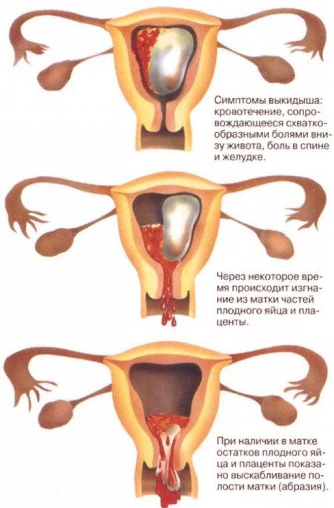 Может ли беременность протекать без симптомов