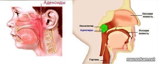 В горле сопли появился кашель чем лечить