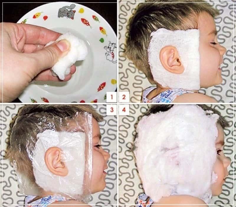 Компресс на ухо ребенку, как сделать компресс на ухо ребенку при отите?