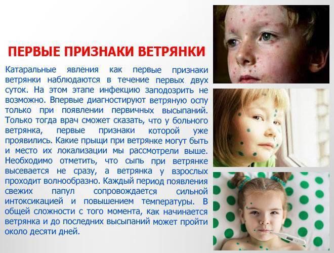 Признаки ветрянки у ребенка (фото). способы заражения ветрянкой и течение болезни у детей и взрослых - pro100sovet