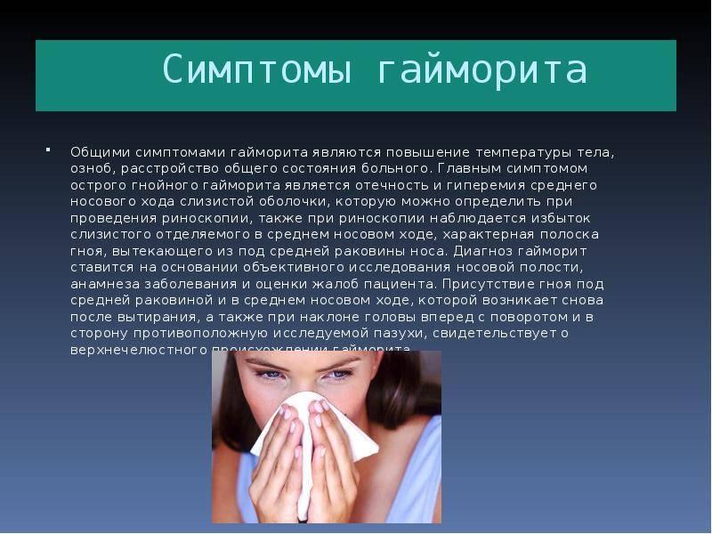 Ринит или насморк у детей: симптомы и лечение