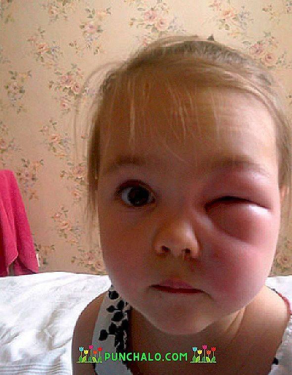 Опухла переносица у ребенка