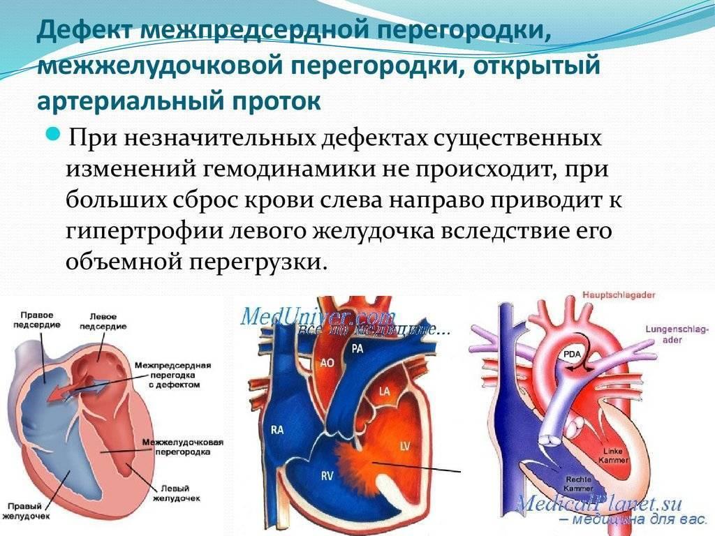 Дефект межпредсердной перегородки (дмпп) у новорожденных детей | osostavekrovi.com
