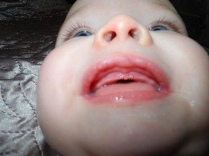 Прорезывание зубов у ребенка: как пережить, способы и советы