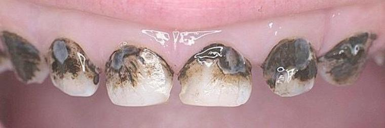 Альтернатива серебрению молочных зубов — зубы