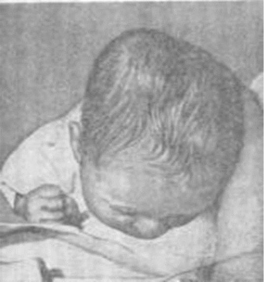 Гематома у новорожденного на голове после родов: последствия, причины и лечение