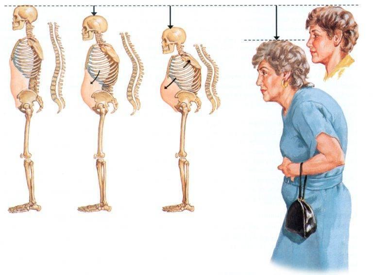 Ювенильный артрит у детей симптомы. причины и лечение заболевания