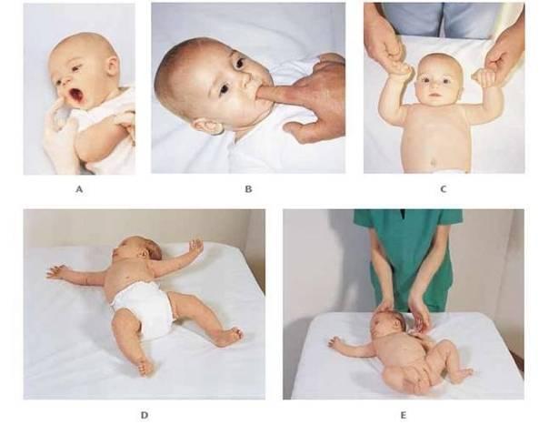 Эффект моро у младенцев что это такое