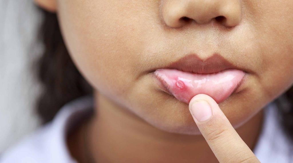 Как вылечить герпесный стоматит у ребёнка: симптомы заболевания, особенности лечения и фото, советы стоматологов