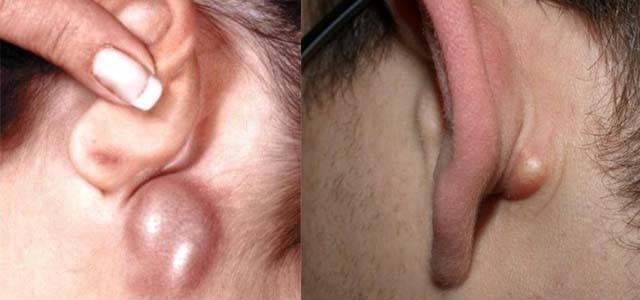 У ребенка увеличен лимфоузел за ухом: причины, симптомы, лечение