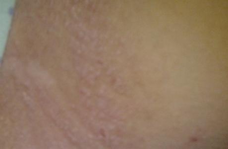 О какой болезни сигнализируют покраснение кожи и сыпь в паху у мужчин?