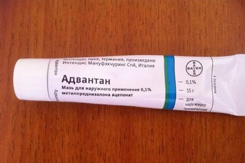Препараты для лечения аллергии на коже: дешевые, но эффективные мази и таблетки