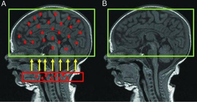 Атрофия головного мозга у детей: симптомы и лечение