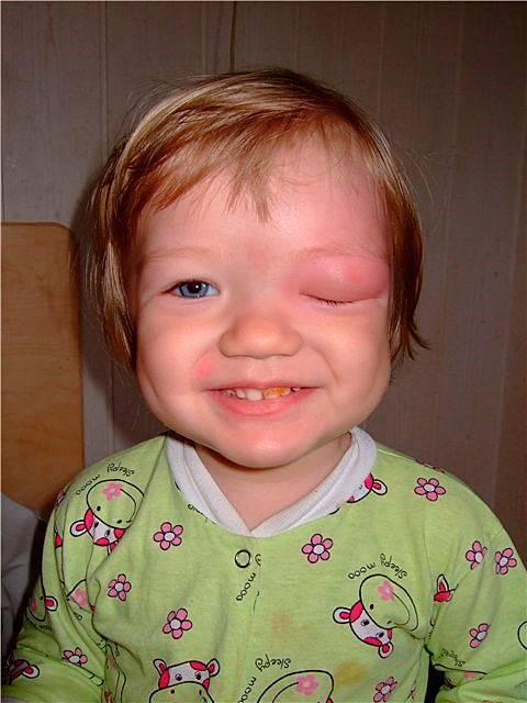 Тяжесть боли и отеки в глазах из-за гайморита: причины и лечение