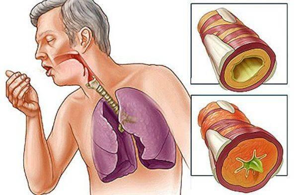 Влажный кашель у детей и взрослых:  причины, симптомы, лечение, как полностью избавиться от мокрого кашля?