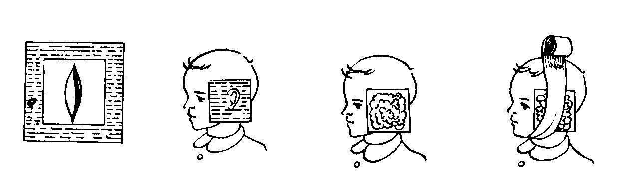 Согревающий компресс на ухо ребенку алгоритм действий - медицинский справочник medrese-rt.ru