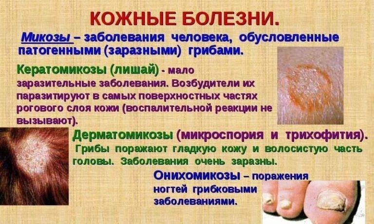 Кожные заболевания у детей: виды и описание инфекционных и неинфекционных болезней кожи