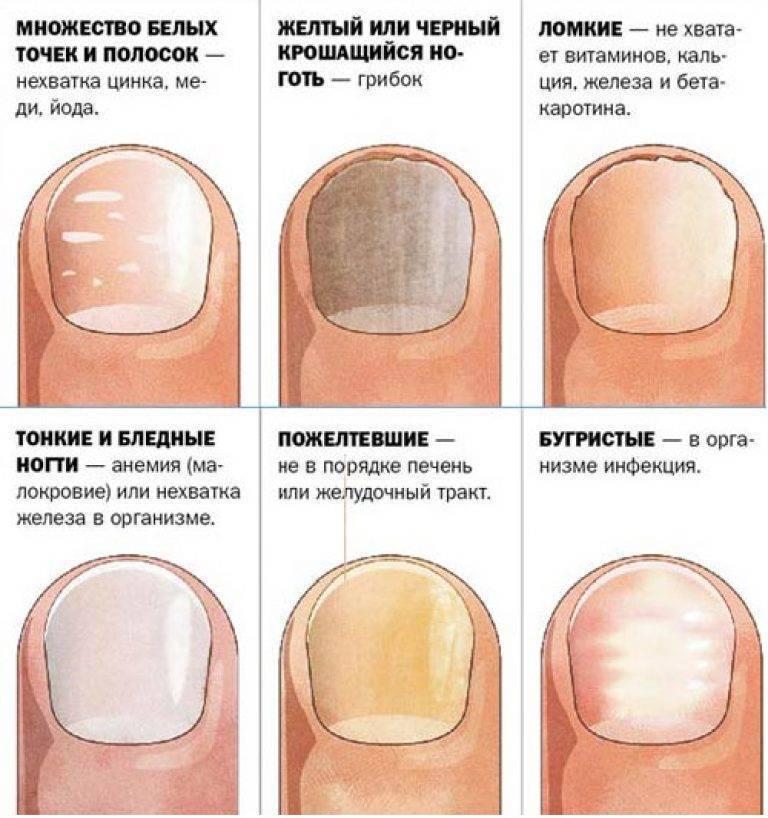 Слоятся ногти на руках - основные причины, советы и лечение