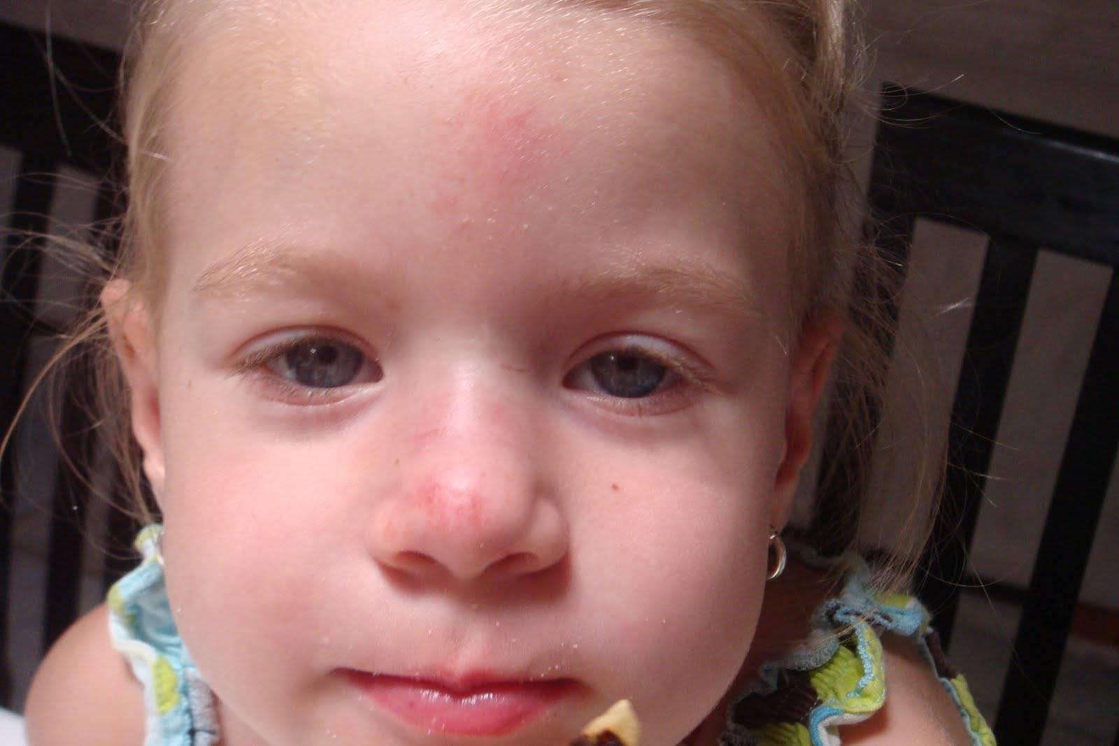 6 признаков перелома носа. что нужно делать?